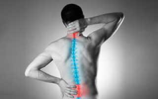 Чем полечить шейный остеохондроз