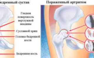 Боль в области тазобедренного сустава у женщины