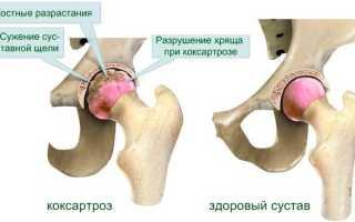 Как лечить артроз тазобедренного сустава 2 степени