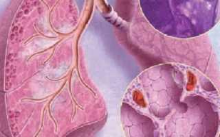 Саркоидоз заразен или нет