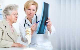 Кто лечит остеопороз у женщин какой врач