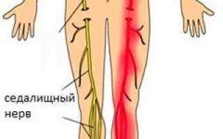 Где находится седалищный нерв у человека