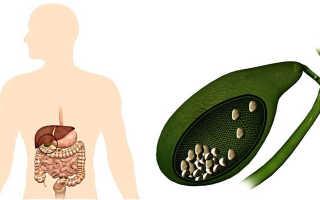 Камни желчного пузыря лечение