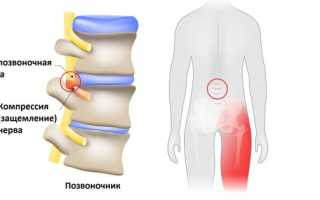 Болезнь седалищного нерва