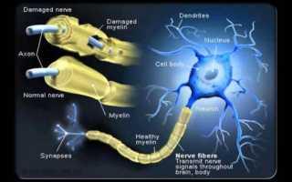 Лечение рассеянного склероза народными методами