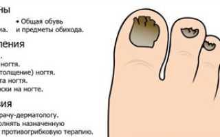 Грибок ногтей на ногах что делать