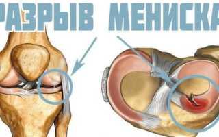 Сильные боли в коленном суставе лечение