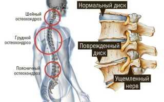 Лечение при остеохондрозе пояснично крестцового отдела позвоночника
