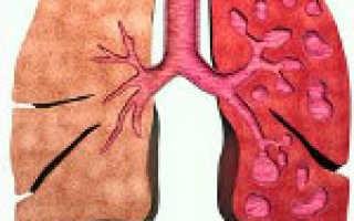 Бронхоэктазная болезнь