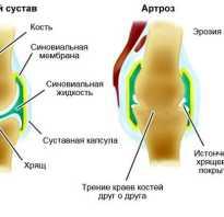 Артрозо артрит правого коленного сустава