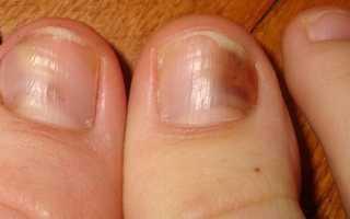 Грибок ногтя народное лечение