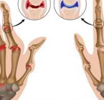 Растяжение связок на пальце руки лечение