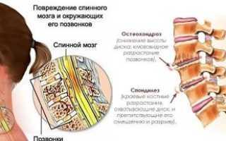 Лечение спондилеза шейного отдела позвоночника народными средствами