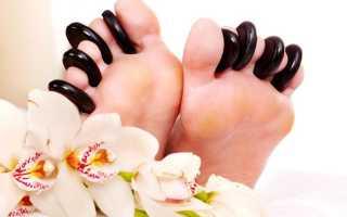 Костная шишка на ноге