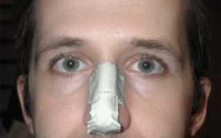 Закрытый перелом костей носа без смещения