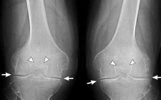 Артроз коленного сустава народная медицина