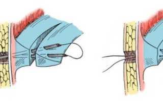 Восстановление после операции мениска коленного сустава
