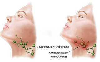 Воспаление подчелюстных лимфоузлов лечение народными средствами