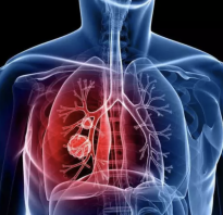 Проверка на пневмонию