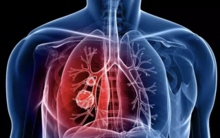 Как выявить пневмонию