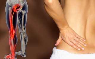 Физиопроцедуры при воспалении седалищного нерва