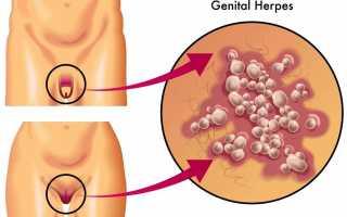 Методы лечения генитального герпеса