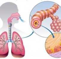 Бронхит симптомы температура