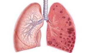Препараты при эмфиземе легких