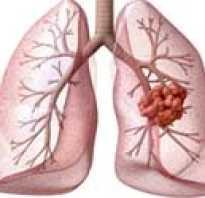 Вторичный рак легких