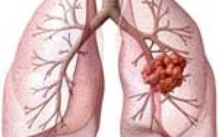 Сообщение про рак легких