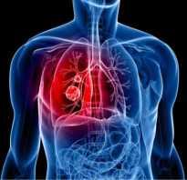 Боль при дыхании в спине