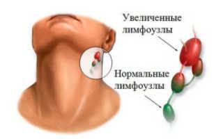 От чего может воспалиться лимфоузел на шее