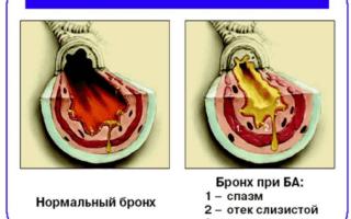 История болезни бронхиальная астма атопическая форма