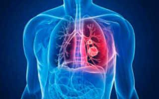 Клебсиелла пневмония чем лечить