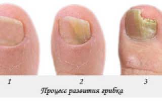 Лечение грибка ногтей и кожи стоп