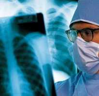 Сколько лежат в больнице с туберкулезом легких