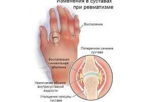 Ревматизм суставов симптомы