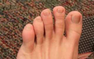 Большой палец ноги опух и болит