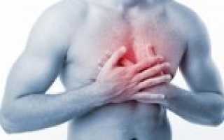 Невралгия в грудной клетке
