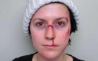 Перелом носа со смещением последствия