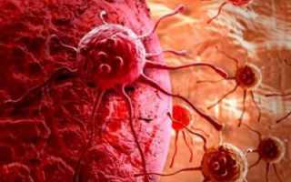 Отличие метастаз от рака