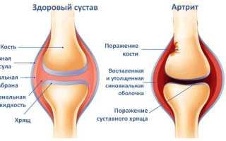 Воспаление суставов колена лечение