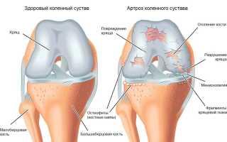 Упражнения бубновского для коленного сустава