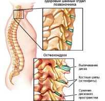 Воротник на шею при остеохондрозе
