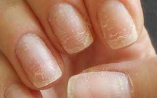 Как быстро избавится от грибка ногтей