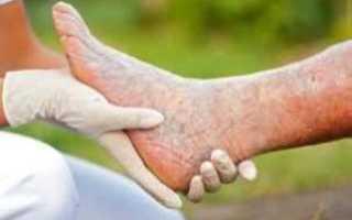 Молочай лечение грибка ногтей