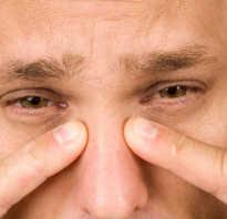 Боль в области носа и лба