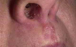 В носу обнаружен стафилококк