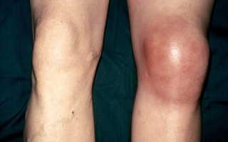 Артрит симптомы коленного сустава
