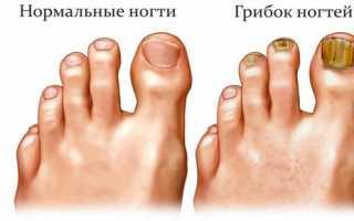 Грибок ногтей способы лечения